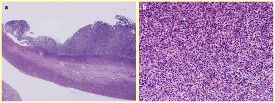 Endometriosis related ovarian neoplasms pathogenesis and for Define mural nodule